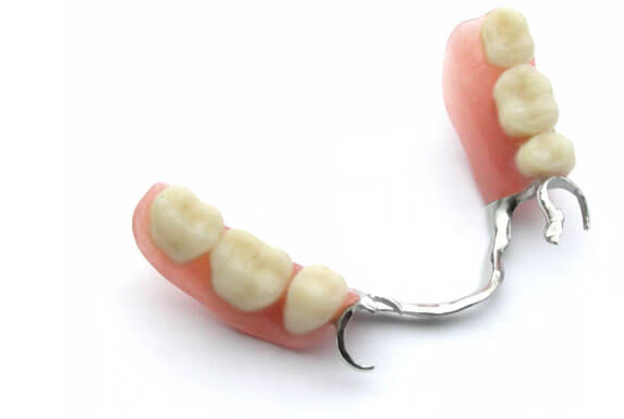 Removable dentures at Karina Mattaliano & Associates Dental Clinic